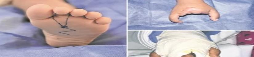 Logran transferencia de dedo de pie a mano
