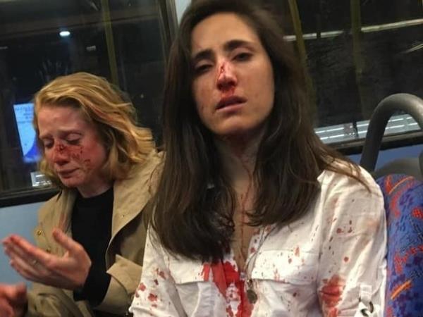 Golpean a una pareja de mujeres en Londres