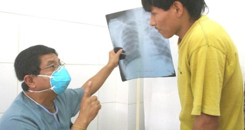 La tuberculosis pulmonar es curable