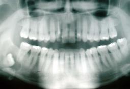 ¿Cómo encontrar a un dentista en Estados Unidos?