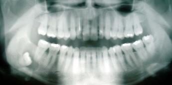 El Alzheimer podría ser causado por una infección en la boca