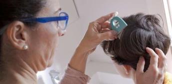 Lavado diario del cabello, principal medida preventiva