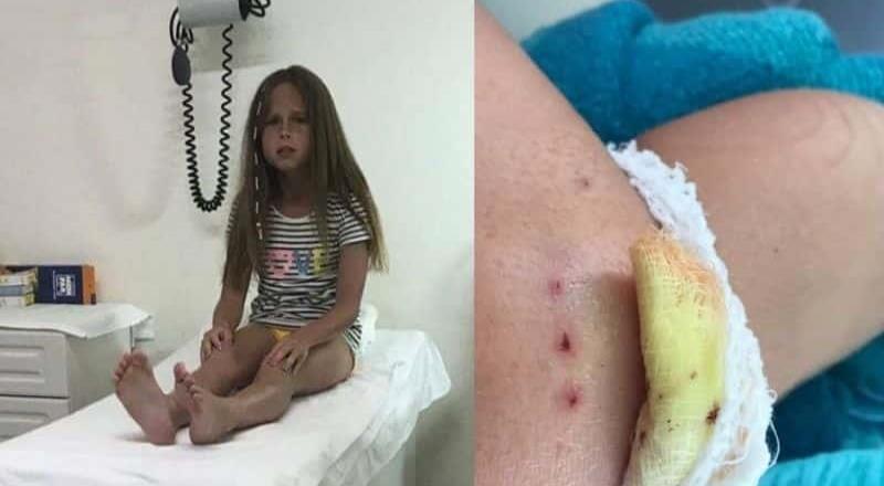 Delfines atacaron a una niña en un show en Cancún
