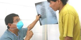 La tuberculosis pulmonar es curable si se detecta a tiempo