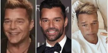 Ricky Martín luce irreconocible tras retoques estéticos en el rostro