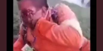 ¡Voy a perder mi ojo!; video muestra a herido de Dos Bocas
